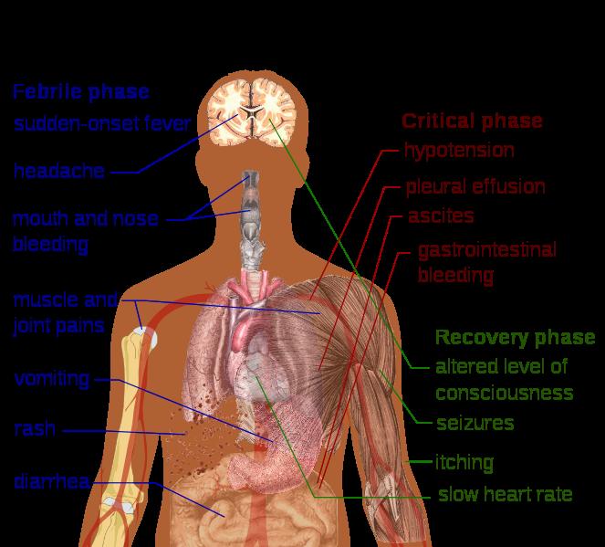 Dengue Fever Symptoms - The Symptoms Of Dengue Fever
